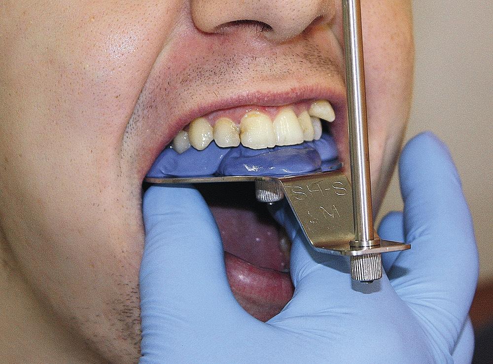 Рис. 8. Регистрация положения зубного ряда верхней челюсти относительно HIP-плоскости.