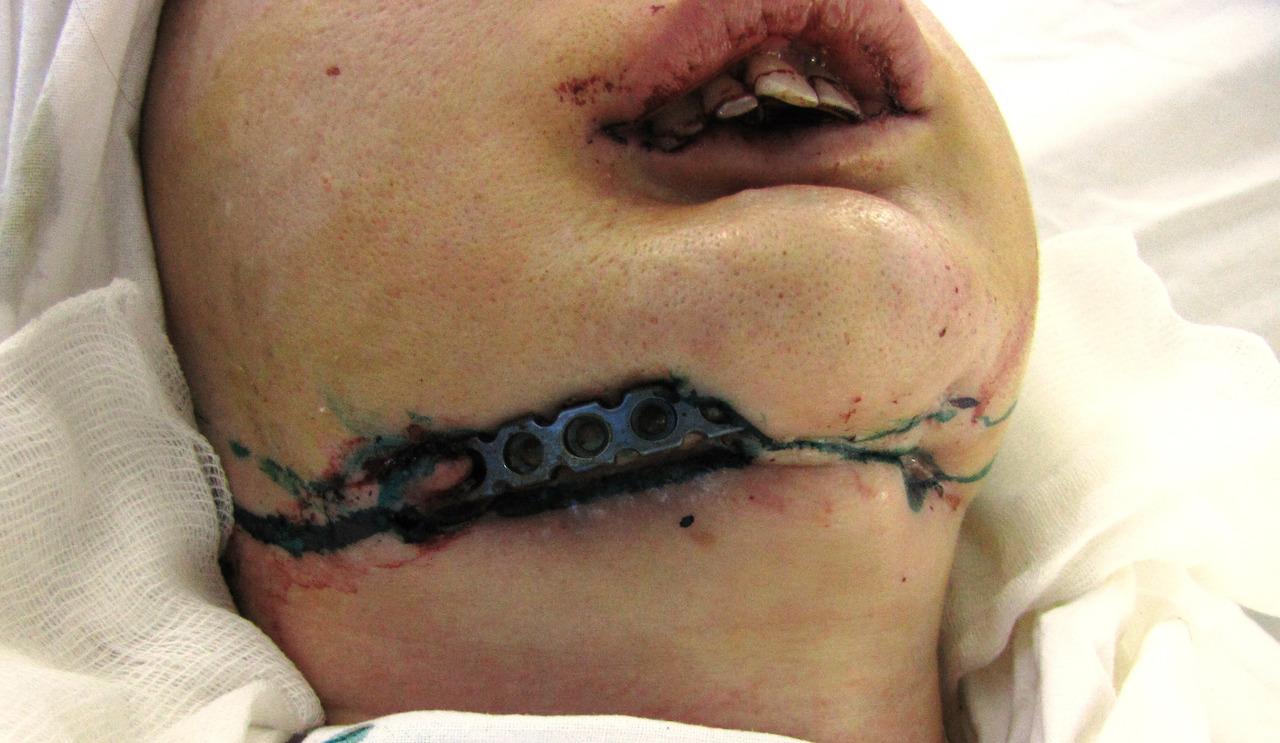 Рис. 2. Больная Ж., 30 лет. Прорезывание реконструктивной пластины через кожу.