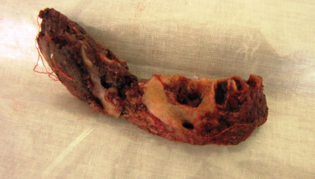 Рис. 4. Больной Ш., 31 года. Секвестр тела нижней челюсти.