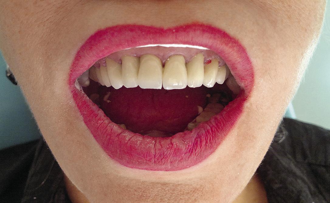 Рис. 14. Готовая конструкция в полости рта.