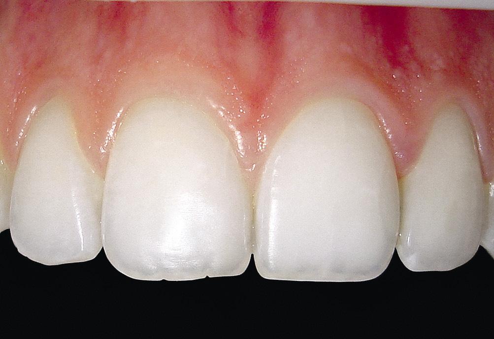 Рис. 1. Участок десны, не имеющий прикрепления к твердым тканям зуба.