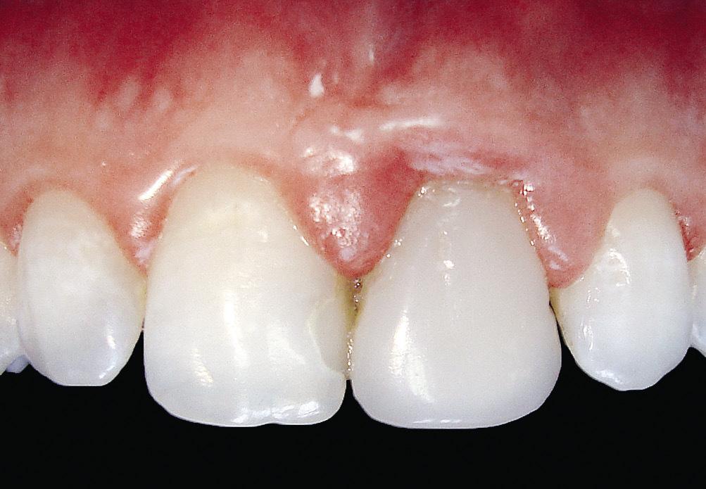 Рис. 5. Воспалительный процесс в области 21 зуба вследствие неточного края реставрации.