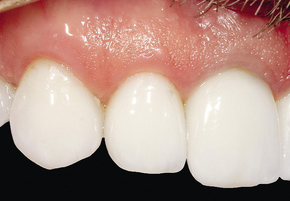 Рис. 6. Отсутствие воспаления десны в области передней группы зубов, покрытых адгезивными керамическими реставрациями.