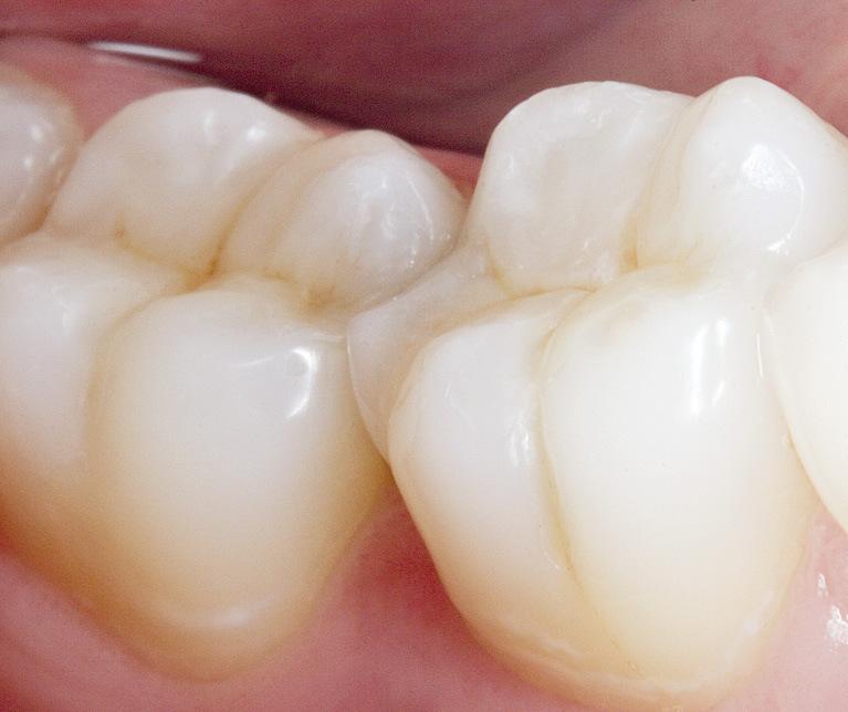 Рис. 12. Лечение кариеса с эстетико-функциональным восстановлением зубов 46, 47 завершено.