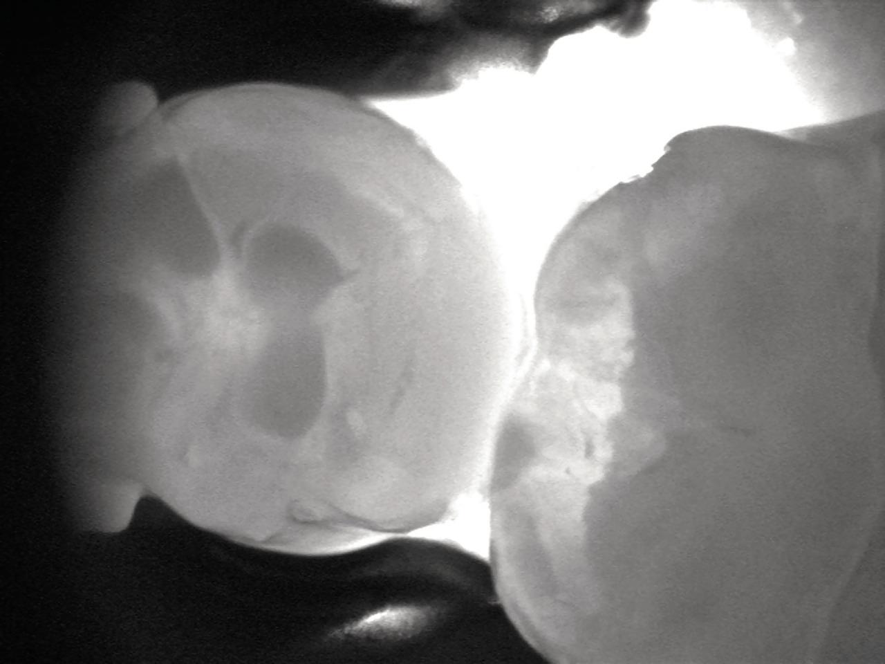 Рис. 1. Поражение зуба в пределах эмали, при котором эффективно консервативное лечение.