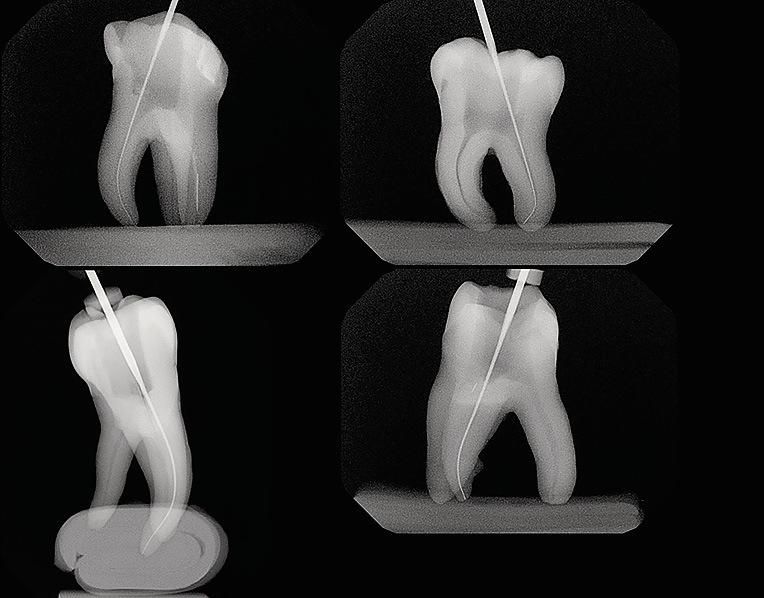 Рис. 2. Примеры зубов, вошедших в данное исследование с разными показателями кривизны каналов.