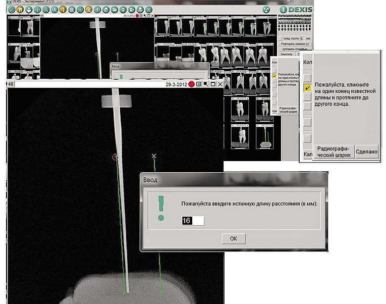 Рис. 3. Скриншот программы Dexis 6 на этапе калибровки измерений.