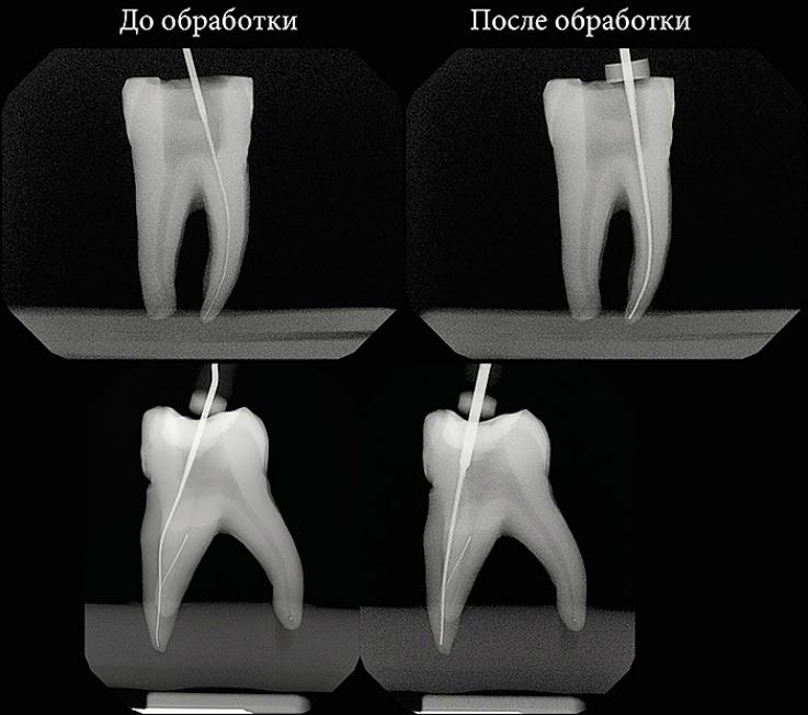 Рис. 4. Рентгенологический контроль в начале и в конце инструментации с к-файлами 10.02 и 30.02.