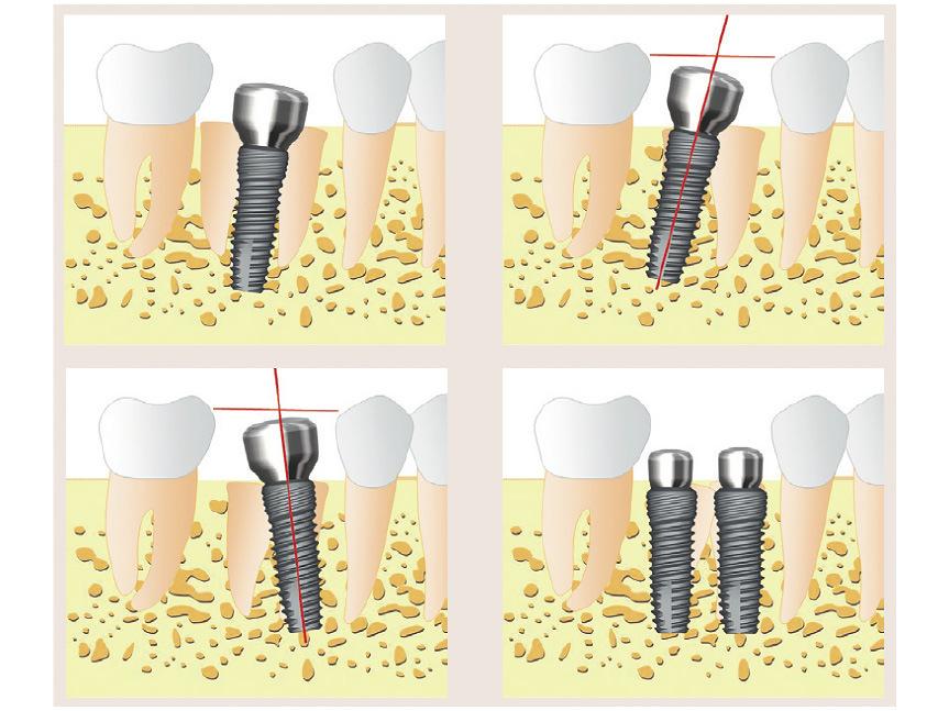 Схема 1. Четыре варианта установки имплантата после удаления нижнего моляра.