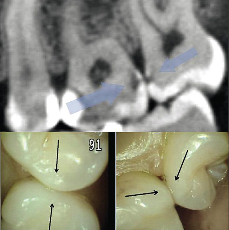 Рис. 2. При обследовании контактного пункта зубов 26, 27 (нижний фрагмент) кариес визуально не определяется; на сагиттальном реформате компьютерной томограммы в области проксимальных к контактному пункту поверхностей тех же зубов деминерализация очевидна.