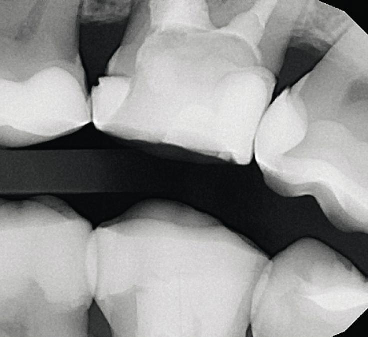 Рис. 4. Интерпроксимальный снимок, выполненный в технике bitewing, исследование состояния контактных пунктов моляров верхней челюсти.