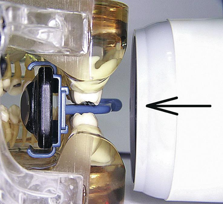 Рис. 5. Демонстрация положения позиционера в полости рта и направления луча при bitewing-съемке.