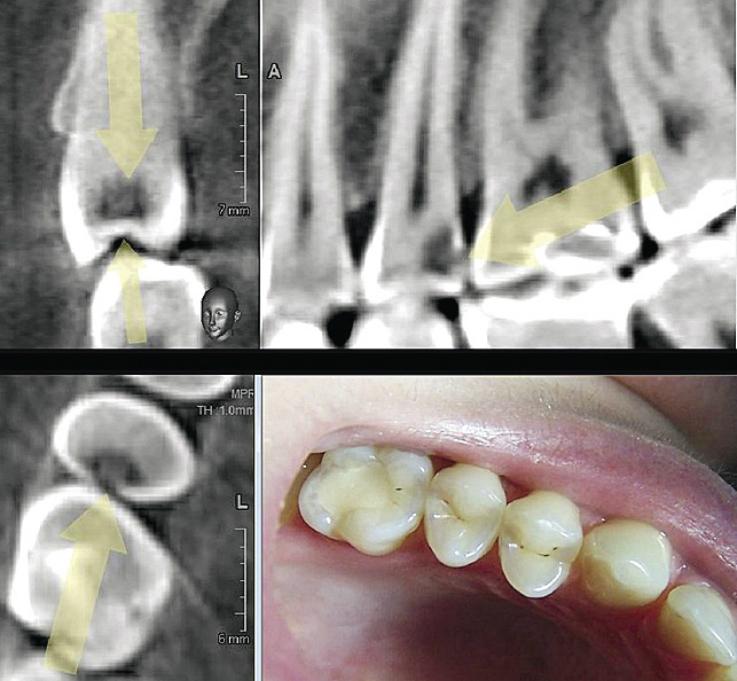 Рис. 8. Трехмерная визуализация кариозного процесса на дистальной поверхности зуба 15.