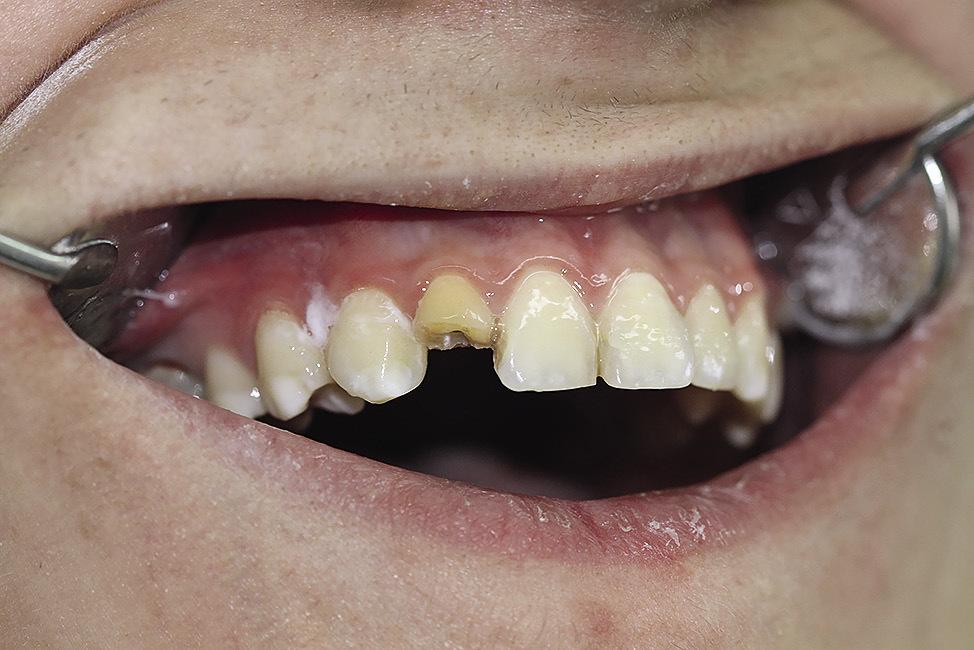Рис. 1. Зуб 12 (до лечения).