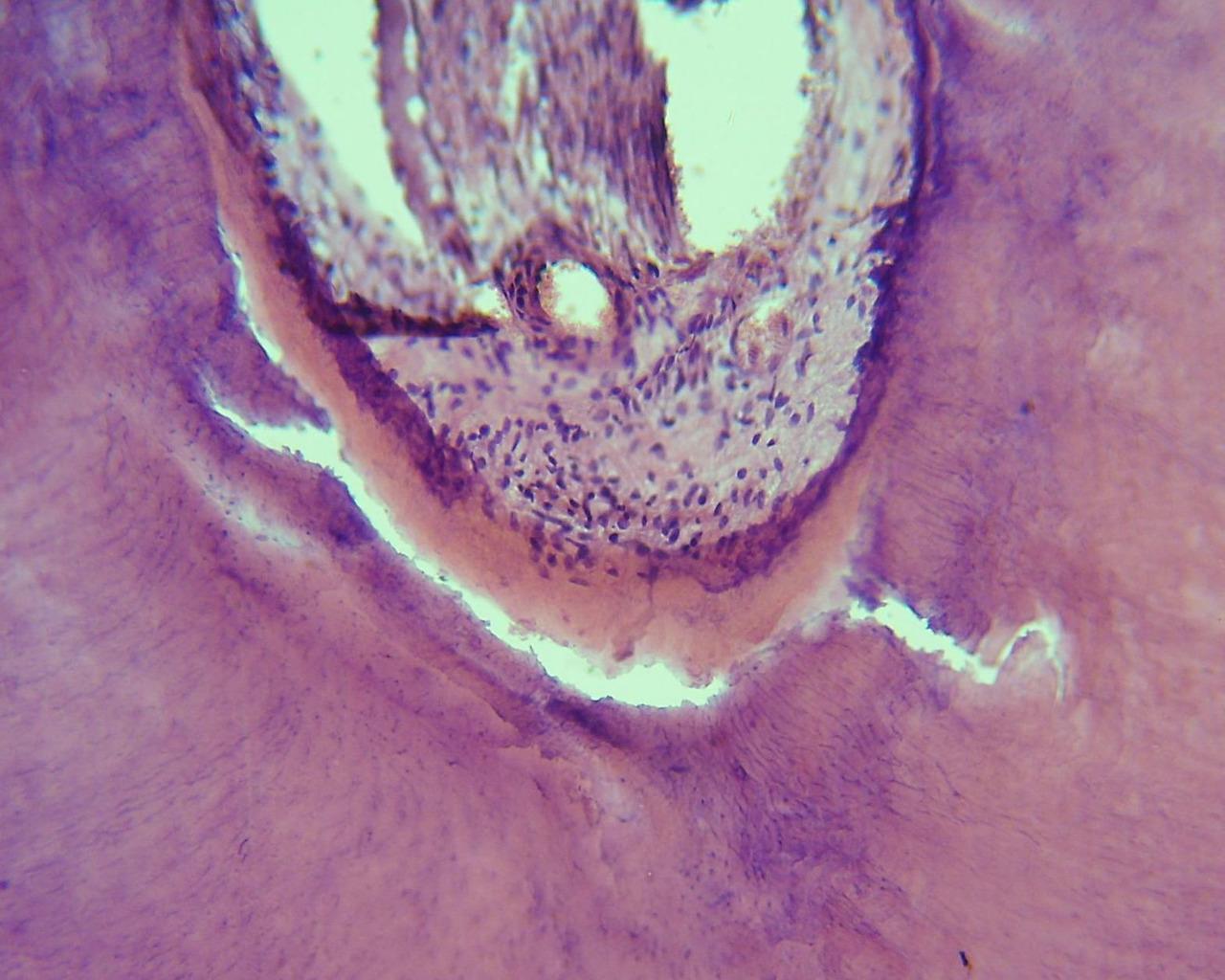 Рис. 1. Морфологическая картина пульпы, предентина и дентина первой группы зубов (окраска гематоксилином и эозином, ув.?40).