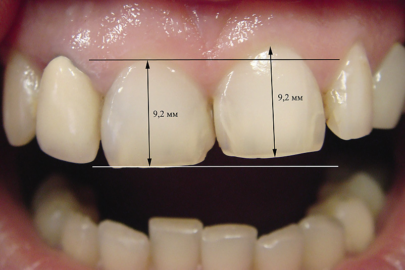 Рис. 2. Одонтометрия зубов.