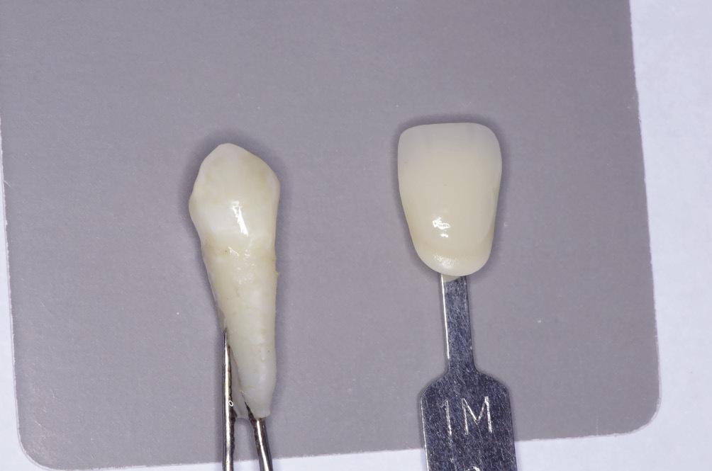 Рис. 3. Определение оттенка цвета удаленного зуба.