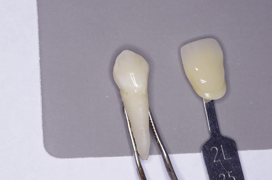 Рис. 4. Повышение светлоты удаленного зуба после иссечения слоя дентина.