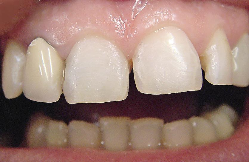 Рис. 4. Зубы после препарирования.