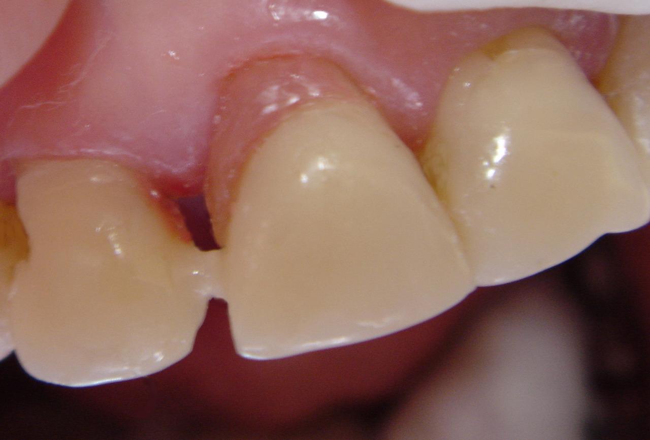 Рис. 4а. Корень зуба покрыт розовым фотополимером.