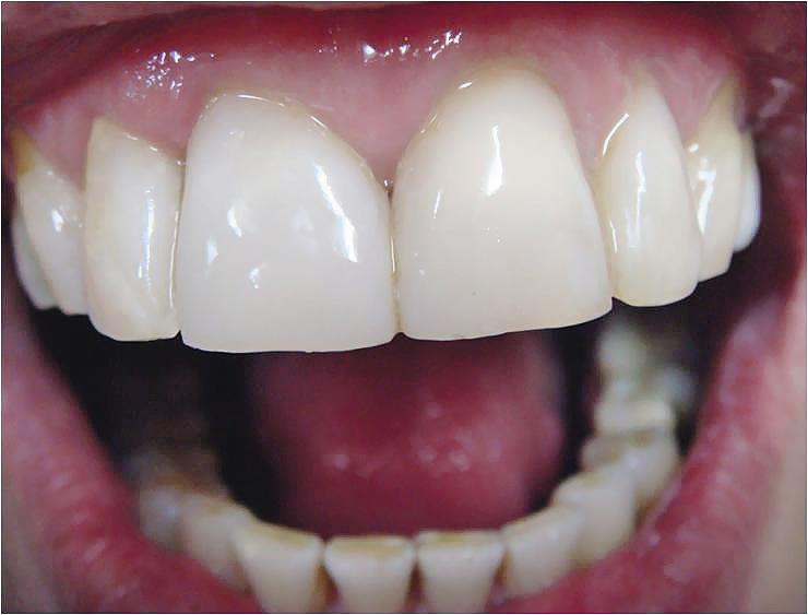 Рис. 6. Выражена белизна центральной группы зубов.