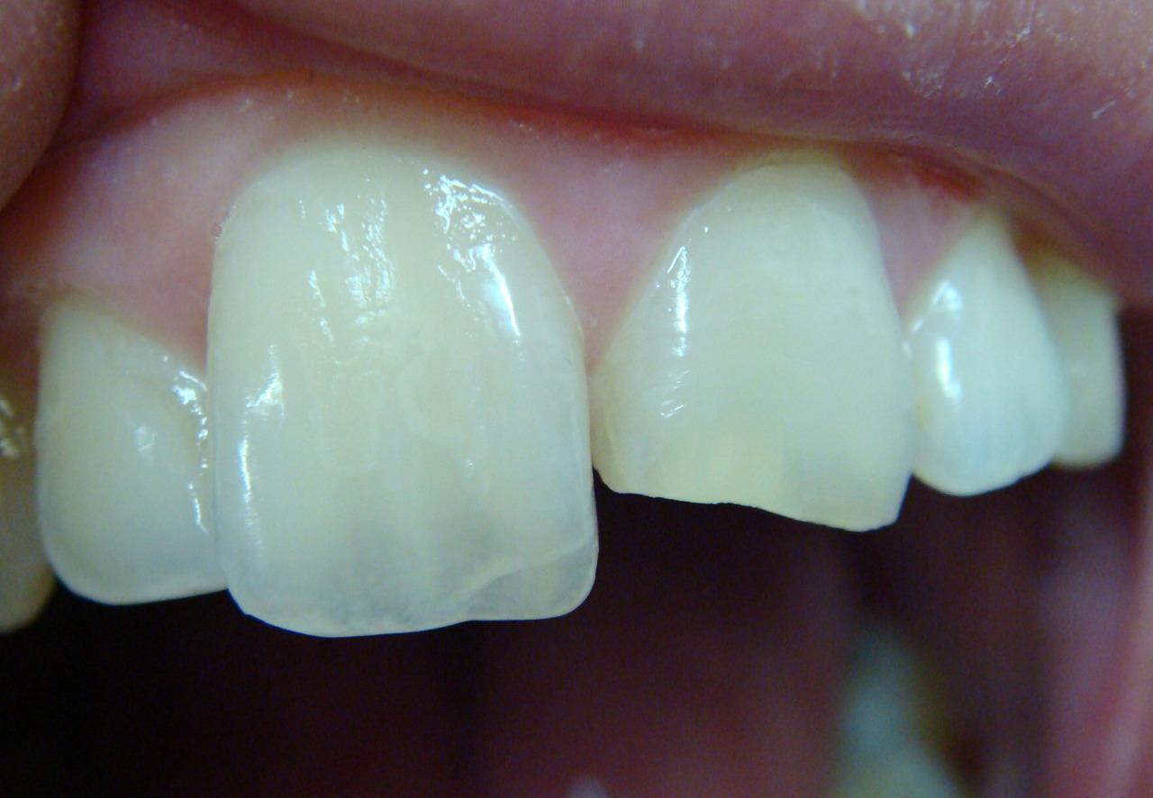 Рис. 5а. Скол зуба до 1/2 коронки.