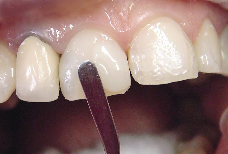 Рис. 8. Слои опакового материала нанесены на область экватора и мезиальную поверхность 11 зуба.