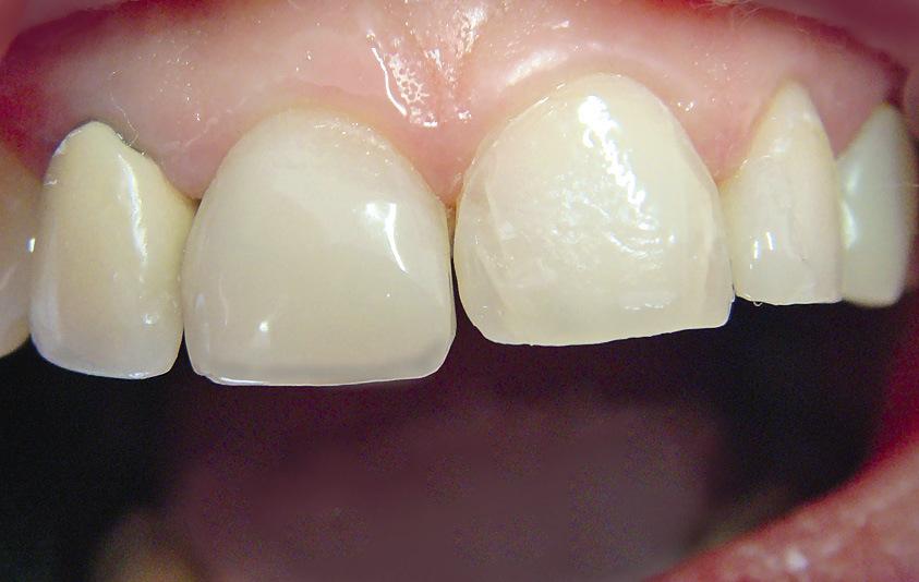 Рис. 10. По вестибулярной поверхности 11 зуба распределен эмалевый оттенок композита.