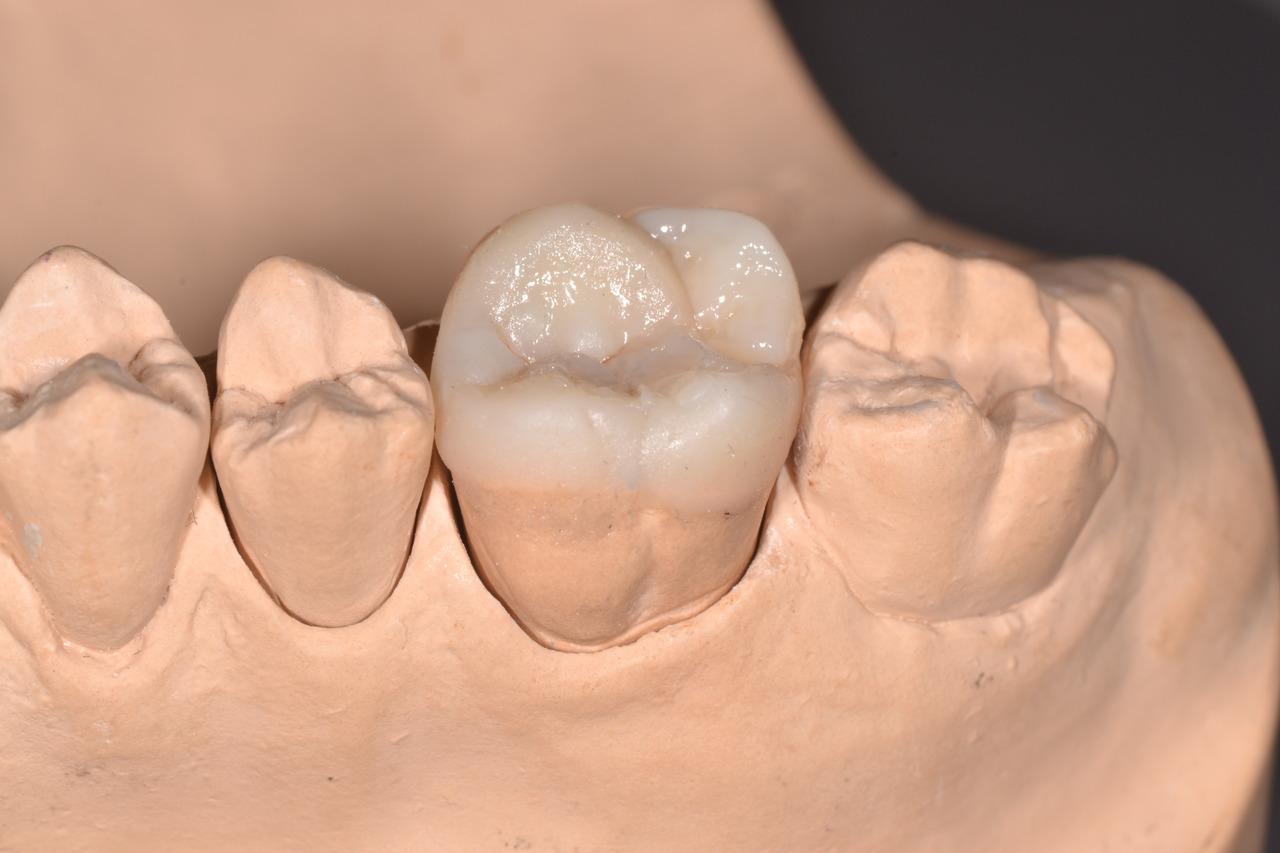 Рис. 10. 16 зуб в зубном ряду.