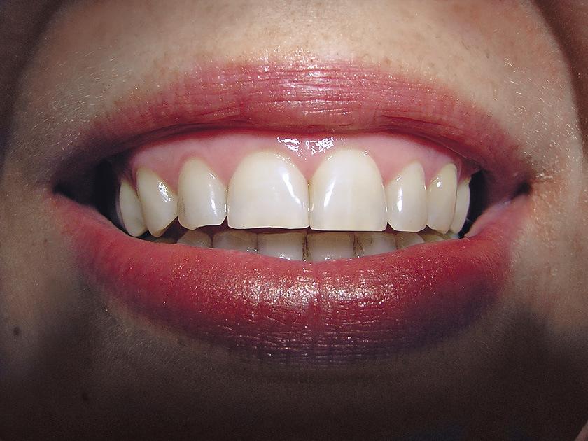 Рис. 11. Определяются индивидуальные оттенки центральных зубов.