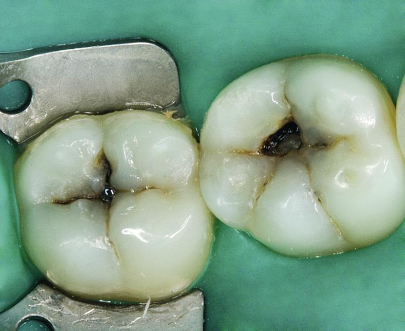 Рис. 1. Зубы 45, 46, 47, изолированные с помощью раббердама.