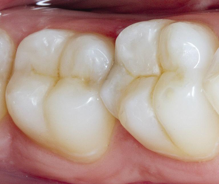 Рис. 11. Вид реставраций зубов через 3 дня.