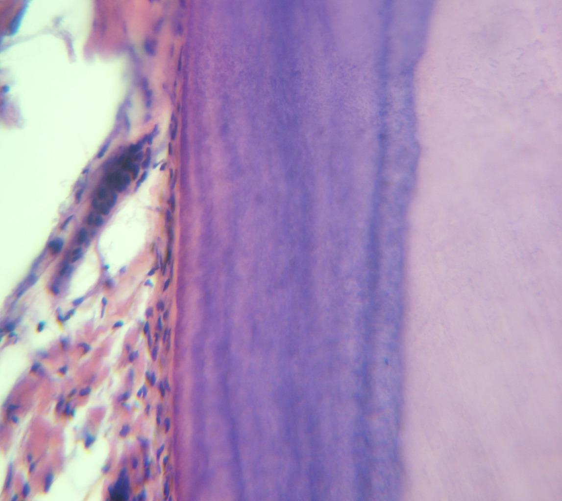 Рис. 12. Волокна и пучки периодонта, входящие в эозинофильный цемент корня первой группы зубов (окраска гематоксилином и эозином, ув.?400).