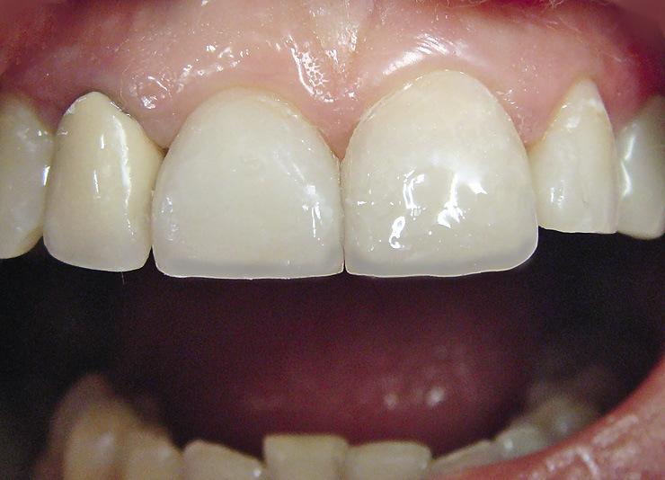 Рис. 12. Имитация светопроницаемого режущего края в 11, 21 и 22 зубах.