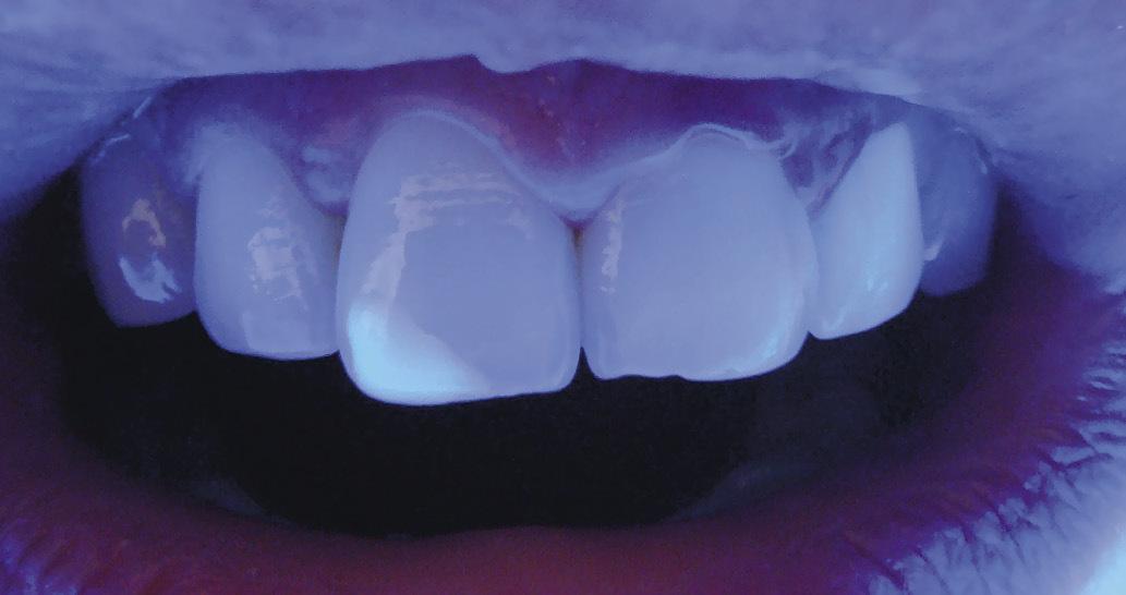 Рис. 13. Отмечается флуоресценция интактных отделов резцов и гашение свечения в области реставрации.