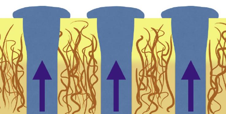 Рис. 12. Прорыв гибридного слоя, возникающий в результате давления дентинной жидкости (схема).
