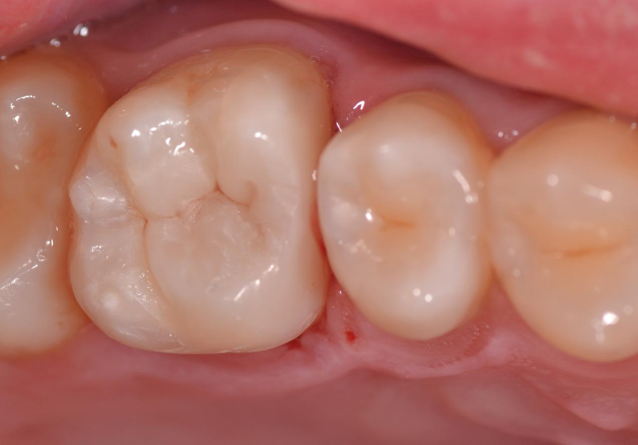 Рис. 14. Готовая реставрация в полости рта.