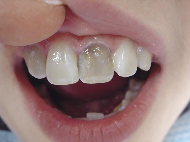 Рис. 15. Высокая интенсивность оттенков цвета депульпированного зуба.