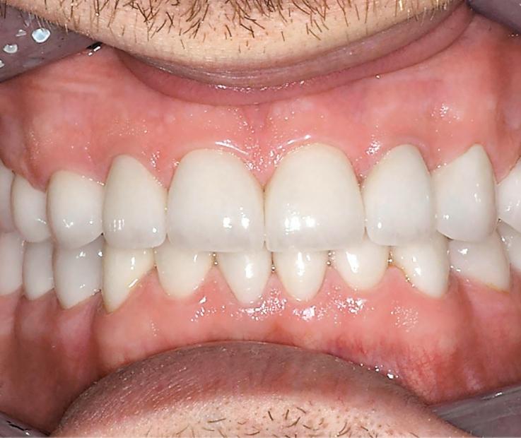Рис. 15. Вид улыбки пациента после окончания лечения.