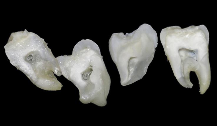 Рис. 14. Результаты собственного эксперимента in vitro: a, b — многочисленные дефекты и неоднородность адгезивной пленки; c, d — пленка из наполненного адгезива сохранена на поверхности зуба, дефектов не обнаружено.