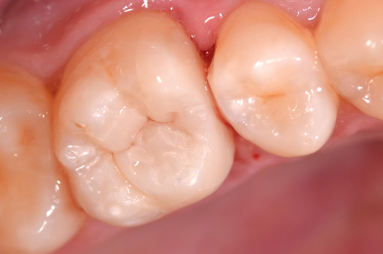 Рис. 15. Готовая реставрация в полости рта.