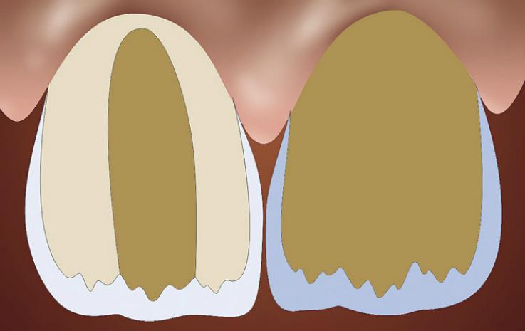 Рис. 15. Опаковая основа реставрации (схема).