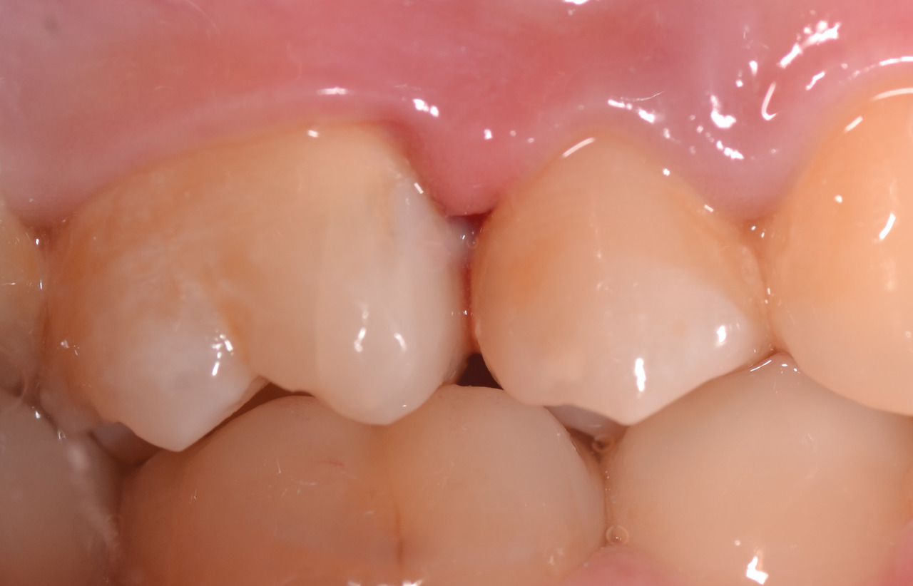 Рис. 16. Готовая реставрация в полости рта.