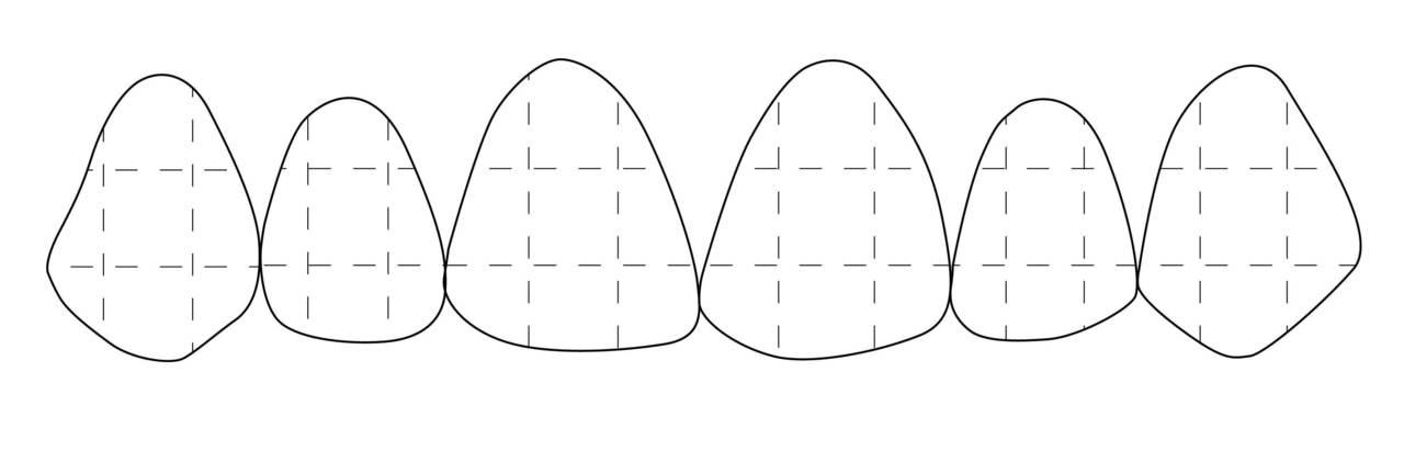 Рис. 16. Условное разделение вестибулярных поверхностей зубов на сегменты.