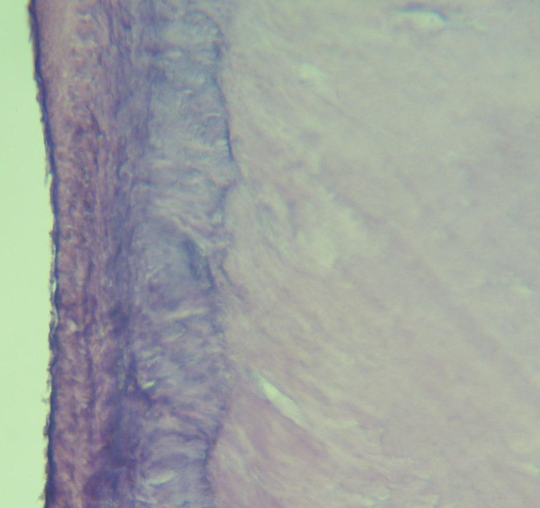 Рис. 17. Волокнистая структура цемента корня второй группы зубов (окраска гематоксилином и эозином, ув.?400).