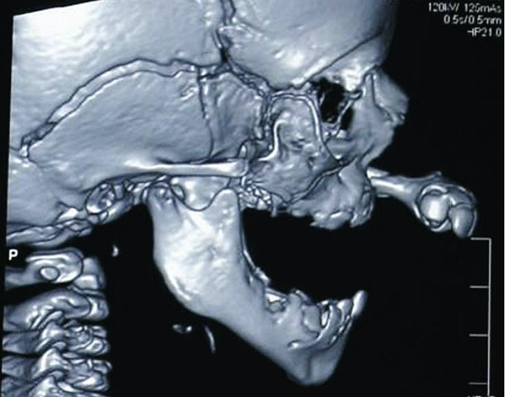 Рис. 1. КТ (боковая проекция). Диагноз: врожденная двусторонняя полная расщелина верхней губы и неба.