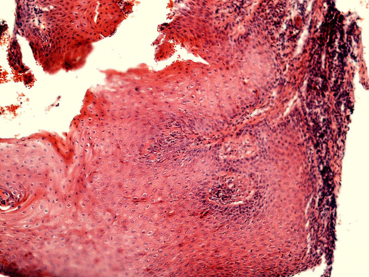 Рис. 1. Окрашивание гематоксилином и эозином: хорошо видны зоны повреждения соединительной ткани с наличием кровоизлияний в месте воздействия электрокоагулятора.
