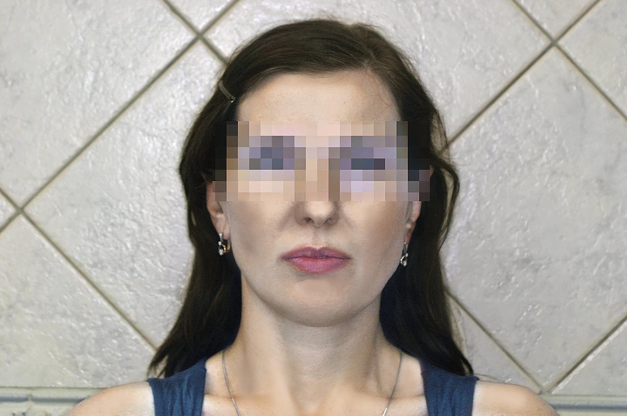 Рис. 1. Диспропорция лица.