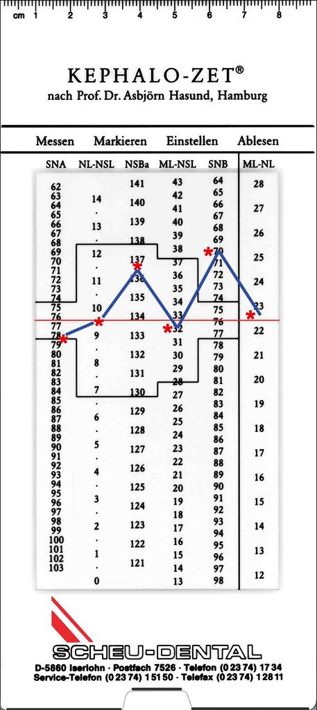 Рис. 1. Kephalo-Zet с нанесенными средними значениями.