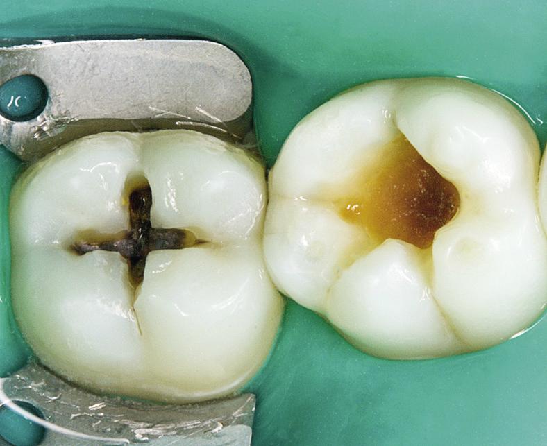 Рис. 2. Вскрыта кариозная полость зуба 47, расширена кариозная полость зуба 46.